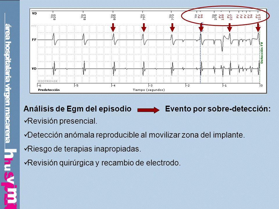 Análisis de Egm del episodio Evento por sobre-detección: Revisión presencial. Detección anómala reproducible al movilizar zona del implante. Riesgo de