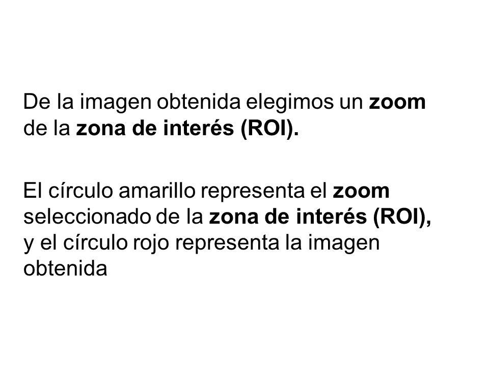 De la imagen obtenida elegimos un zoom de la zona de interés (ROI). El círculo amarillo representa el zoom seleccionado de la zona de interés (ROI), y