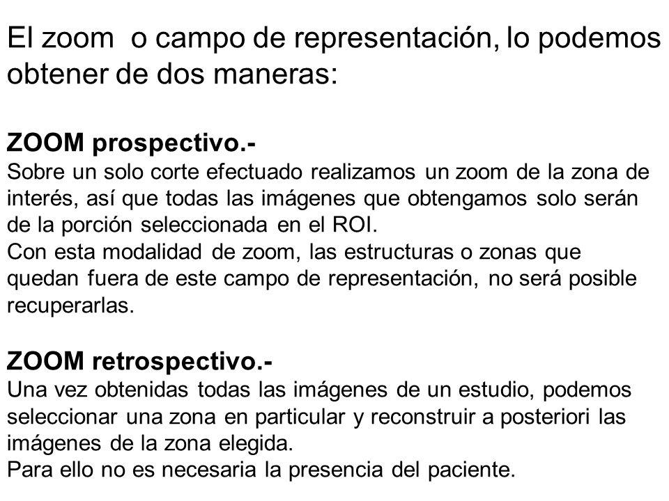 El zoom o campo de representación, lo podemos obtener de dos maneras: ZOOM prospectivo.- Sobre un solo corte efectuado realizamos un zoom de la zona d