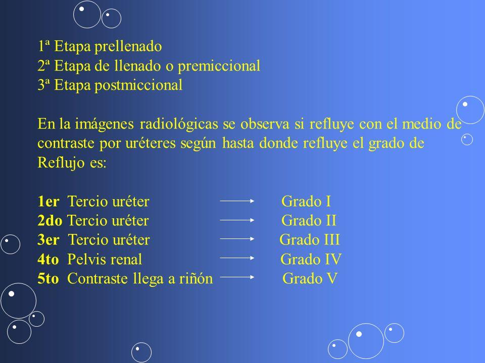 1ª Etapa prellenado 2ª Etapa de llenado o premiccional 3ª Etapa postmiccional En la imágenes radiológicas se observa si refluye con el medio de contra