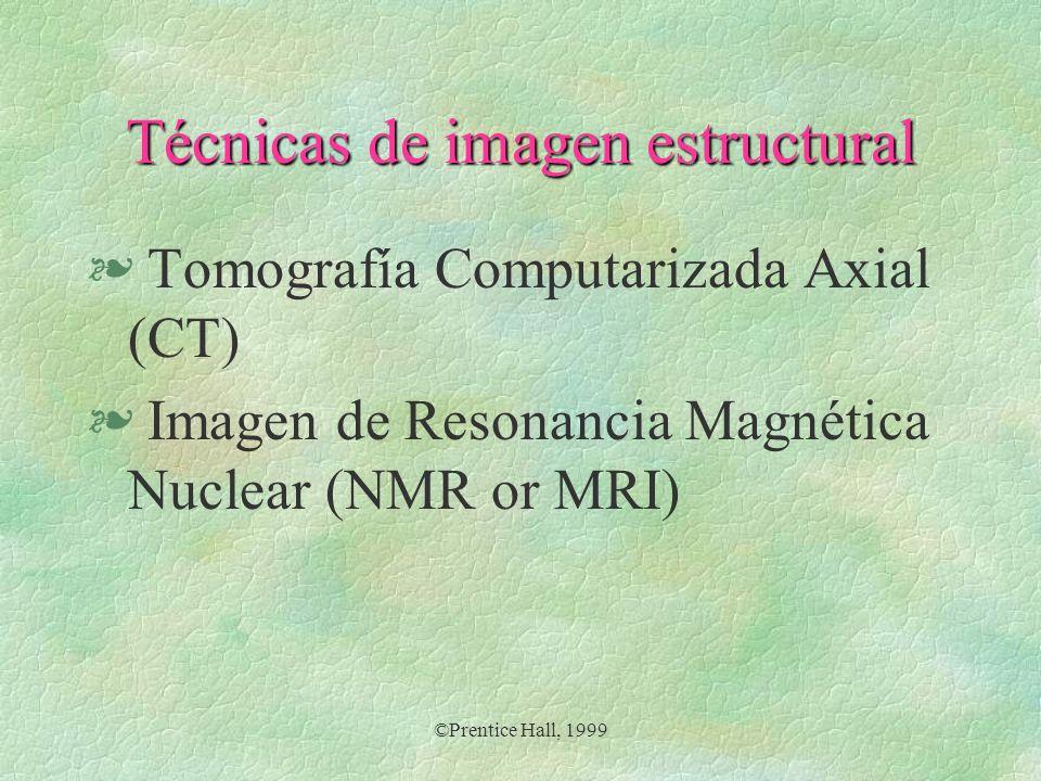 ©Prentice Hall, 1999 Tomografía computarizada axial § Una unidad de fotografía por rayos X, emite un rayo radioactivo a través del tejido óseo y cerebral para mostrar las estructuras del cerebro.