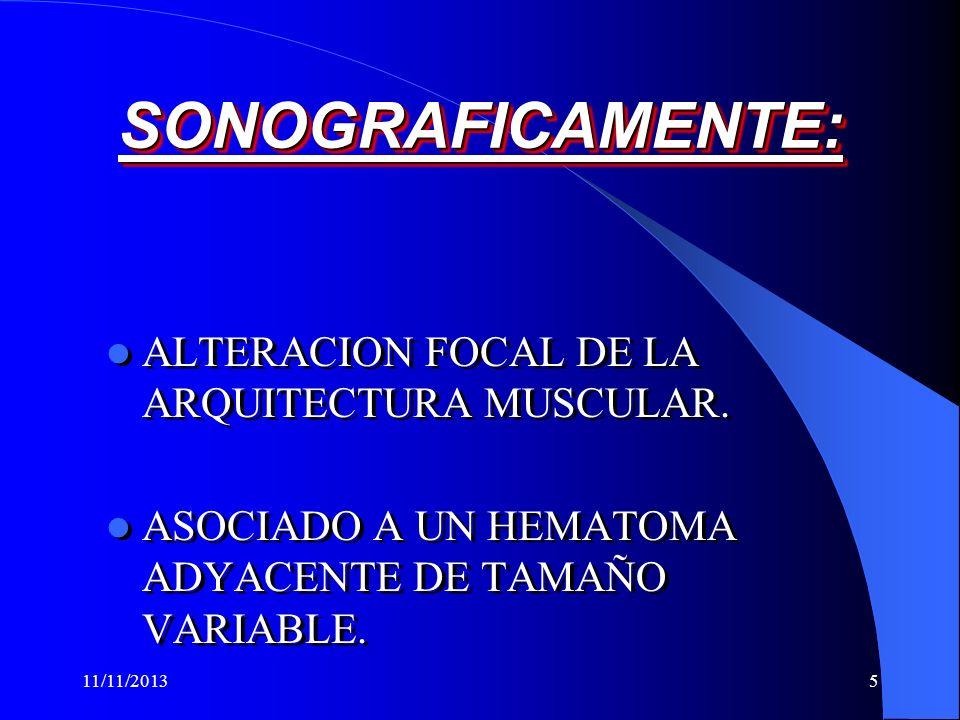 11/11/20135 SONOGRAFICAMENTE:SONOGRAFICAMENTE: ALTERACION FOCAL DE LA ARQUITECTURA MUSCULAR.