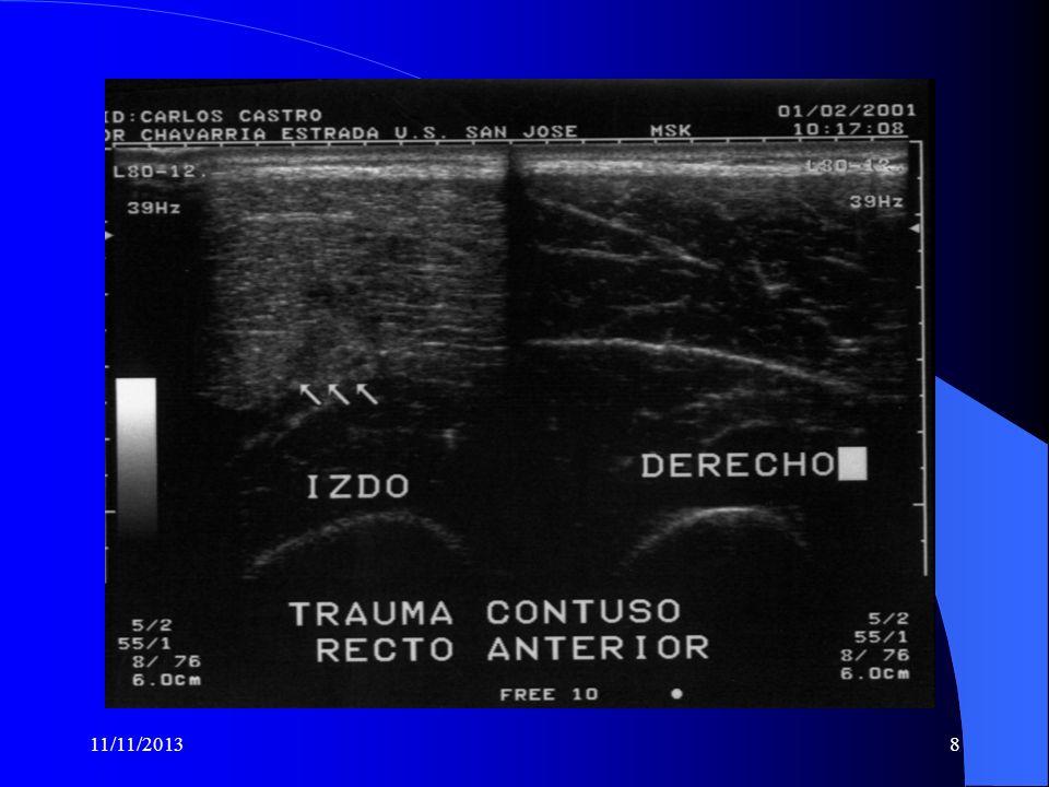 11/11/201318 MIOSITIS OSIFICANTE: SE PREFIERE LLAMARLE FORMACION HETEROTROPICA DE HUESO.
