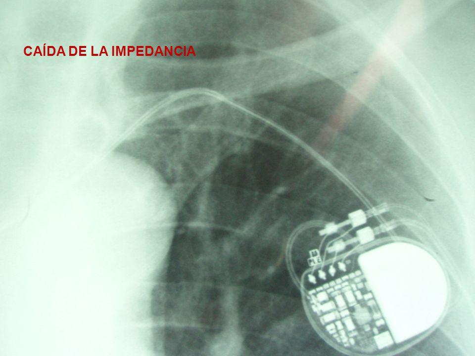Tabla de impedancias y umbrales ImpedanciaUmbral Quirófano1416 Ω1,7 v 3 día921 Ω2 v Alta implante730 Ω1,75 v 3 meses753 Ω0,75 v 14 meses344 Ω0,6 v 18 meses315 Ω0,6 v 26 meses274 Ω0,6 v
