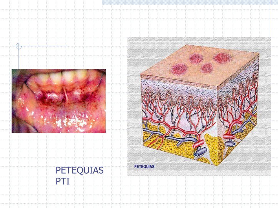 PETEQUIAS PTI