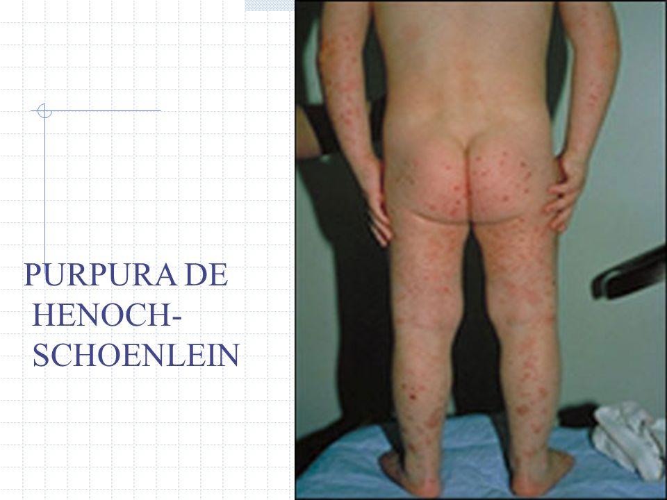 PURPURA DE HENOCH- SCHOENLEIN