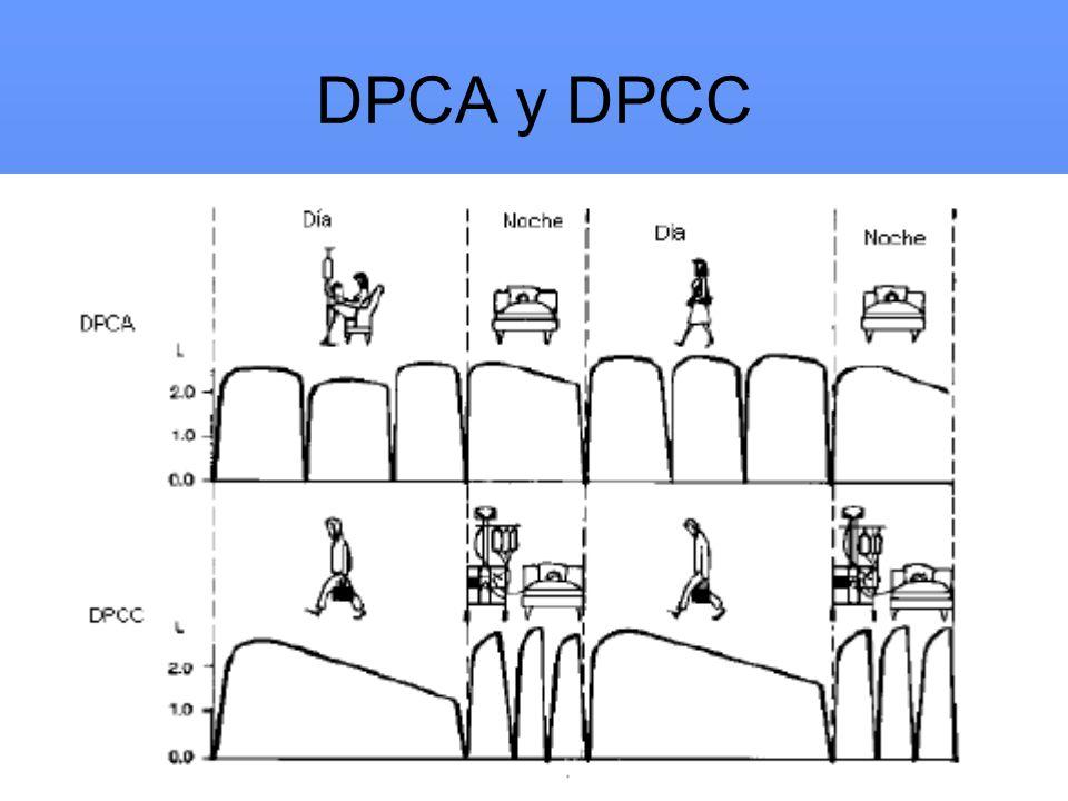 DPCA y DPCC