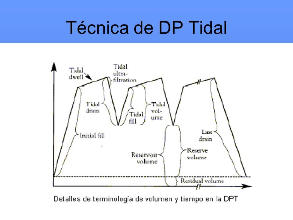Técnica de DP Tidal