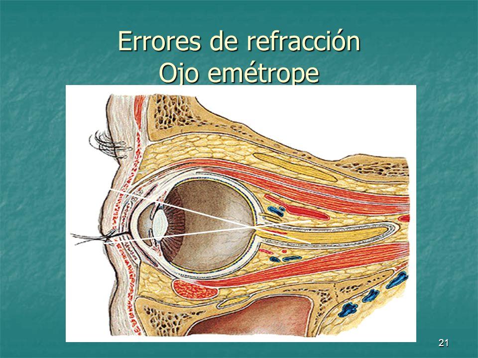 22 Errores de refracción En condiciones normales los rayos de luz convergen en la retina y la visión es nítida En condiciones normales los rayos de luz convergen en la retina y la visión es nítida Cuando los rayos no enfocan en la retina hablamos de errores de refracción: Cuando los rayos no enfocan en la retina hablamos de errores de refracción: