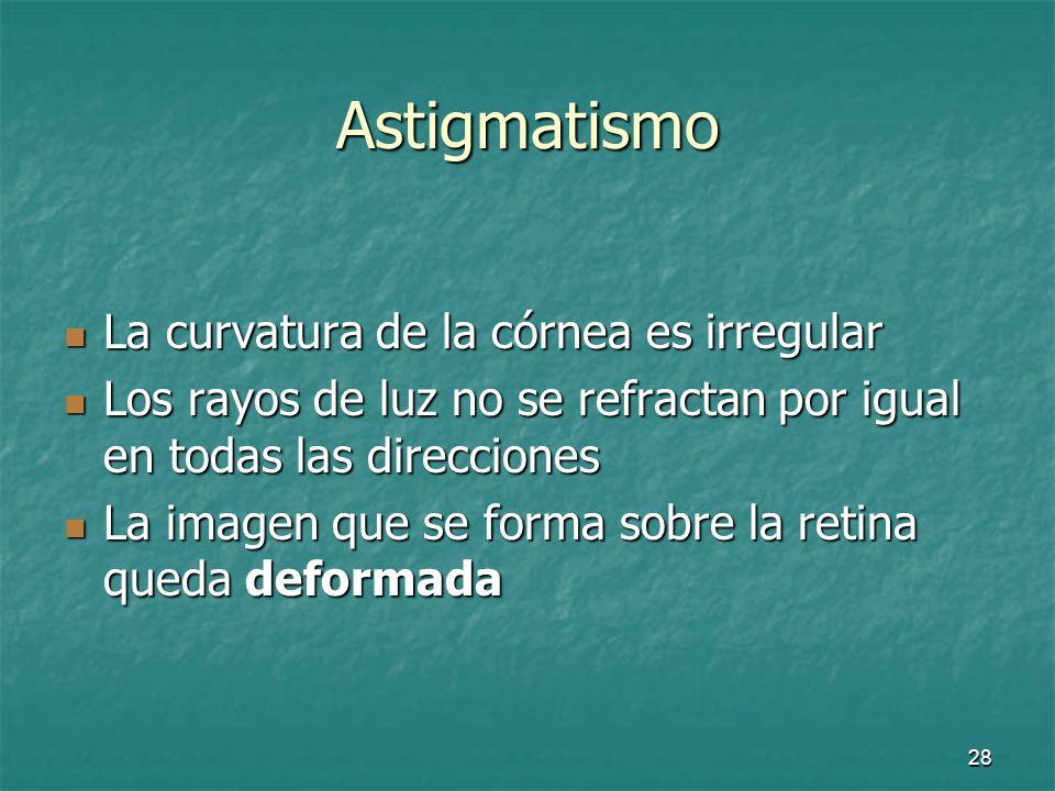 29 Astigmatismo Ojo emétropeOjo astigmático Ojo emétropeOjo astigmático