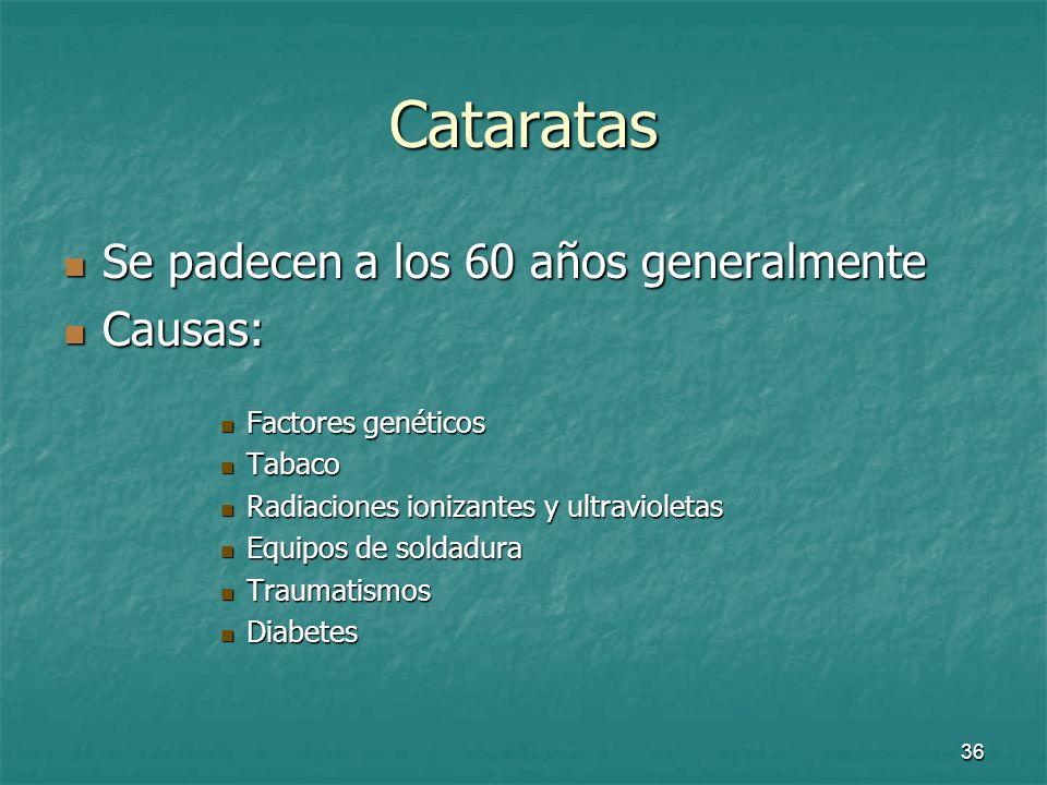 37 Cataratas Se desarrollan muy lentamente Se desarrollan muy lentamente Tipos de cataratas: Tipos de cataratas: Cataratas corticales -> se mantiene la visión Cataratas corticales -> se mantiene la visión Cataratas centrales -> se pierde la visión Cataratas centrales -> se pierde la visión