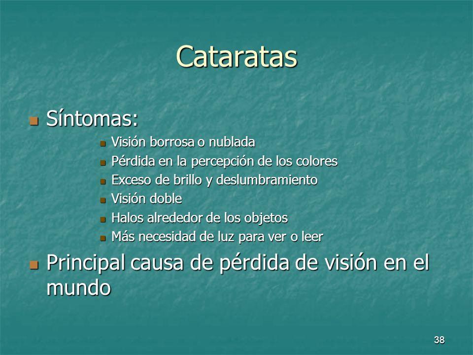39 Medidas para las cataratas Uso de gafas de sol con filtros para ultravioletas B (UVB) Uso de gafas de sol con filtros para ultravioletas B (UVB) Tratamiento Tratamiento Uso de lentes Uso de lentes Cirugía Cirugía