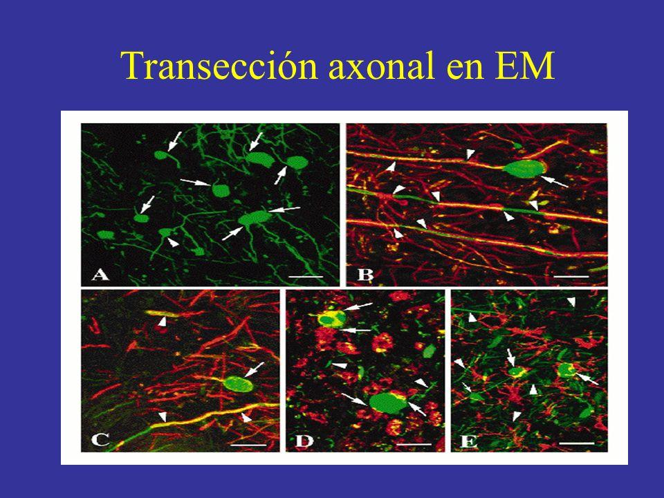 Transección axonal en EM