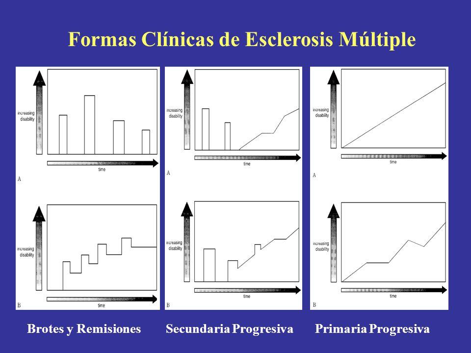 Formas Clínicas de Esclerosis Múltiple Brotes y Remisiones Secundaria Progresiva Primaria Progresiva