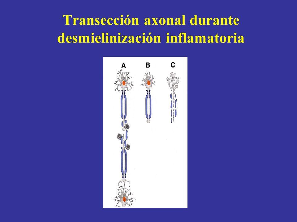 Transección axonal durante desmielinización inflamatoria