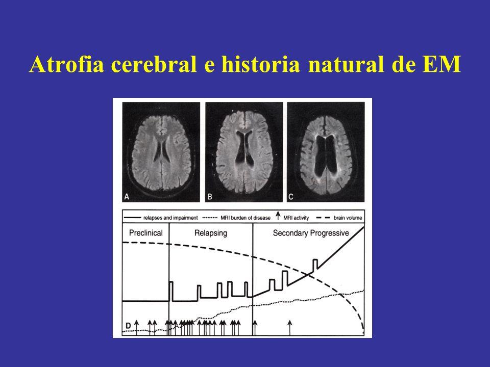 Atrofia cerebral e historia natural de EM