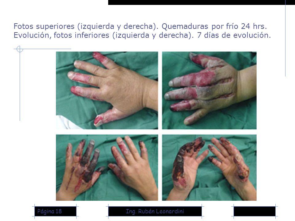 Ing. Rubén LeonardiniPágina 18 Fotos superiores (izquierda y derecha). Quemaduras por frío 24 hrs. Evolución, fotos inferiores (izquierda y derecha).