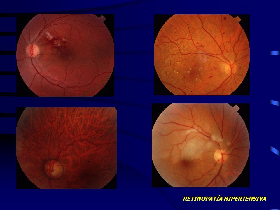 RETINOPATÍA HIPERTENSIVA COMPLICACIONES Desprendimiento seroso de retina Oclusión de vena central de la retina Gran afectación visual por maculopatía