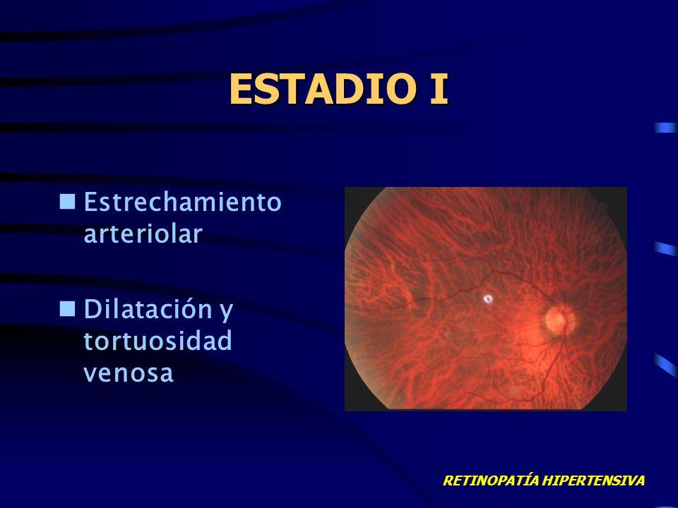 RETINOPATÍA HIPERTENSIVA ESTADIO I Estrechamiento arteriolar Dilatación y tortuosidad venosa