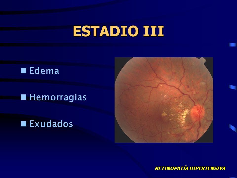 RETINOPATÍA HIPERTENSIVA ESTADIO II Signos de cruce arteriovenosos Hilo de cobre/plata Hemorragias aisladas