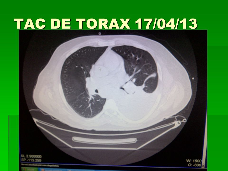 TAC DE TORAX 17/04/13