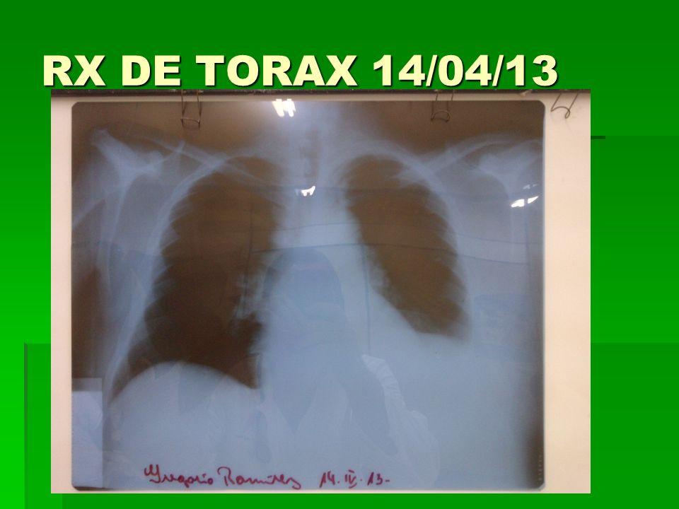 RX DE TORAX 14/04/13