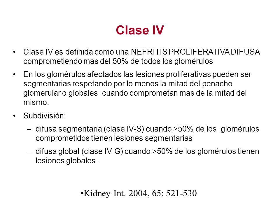 Clase IV Clase IV es definida como una NEFRITIS PROLIFERATIVA DIFUSA comprometiendo mas del 50% de todos los glomérulos En los glomérulos afectados la