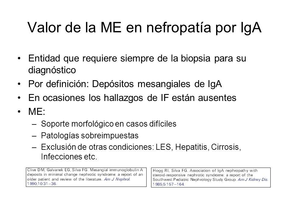 Valor de la ME en nefropatía por IgA Entidad que requiere siempre de la biopsia para su diagnóstico Por definición: Depósitos mesangiales de IgA En oc