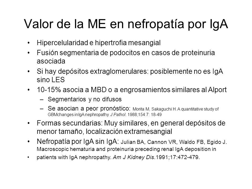 Valor de la ME en nefropatía por IgA Hipercelularidad e hipertrofia mesangial Fusión segmentaria de podocitos en casos de proteinuria asociada Si hay