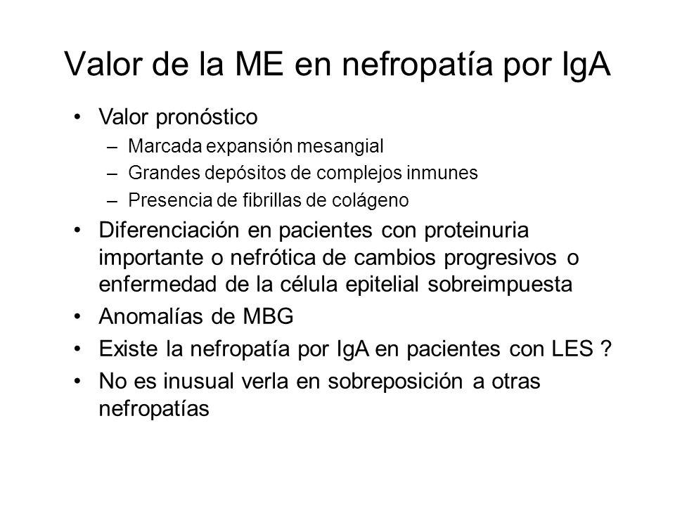 Valor de la ME en nefropatía por IgA Valor pronóstico –Marcada expansión mesangial –Grandes depósitos de complejos inmunes –Presencia de fibrillas de