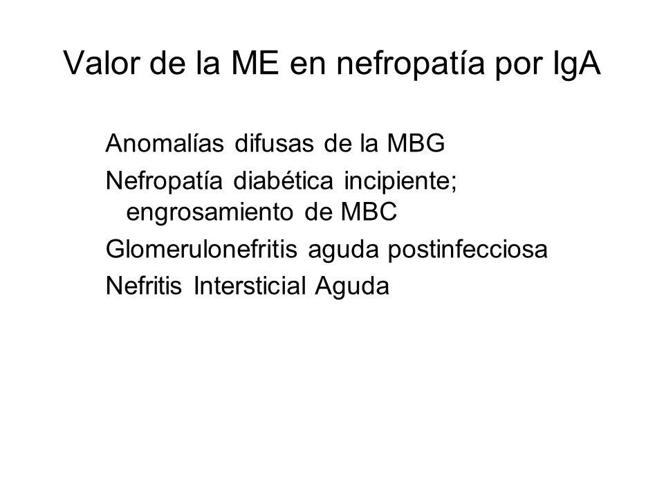Valor de la ME en nefropatía por IgA Anomalías difusas de la MBG Nefropatía diabética incipiente; engrosamiento de MBC Glomerulonefritis aguda postinf
