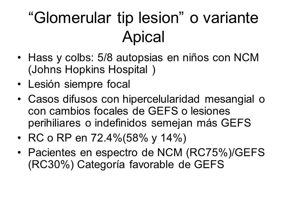 Glomerular tip lesion o variante Apical Hass y colbs: 5/8 autopsias en niños con NCM (Johns Hopkins Hospital ) Lesión siempre focal Casos difusos con