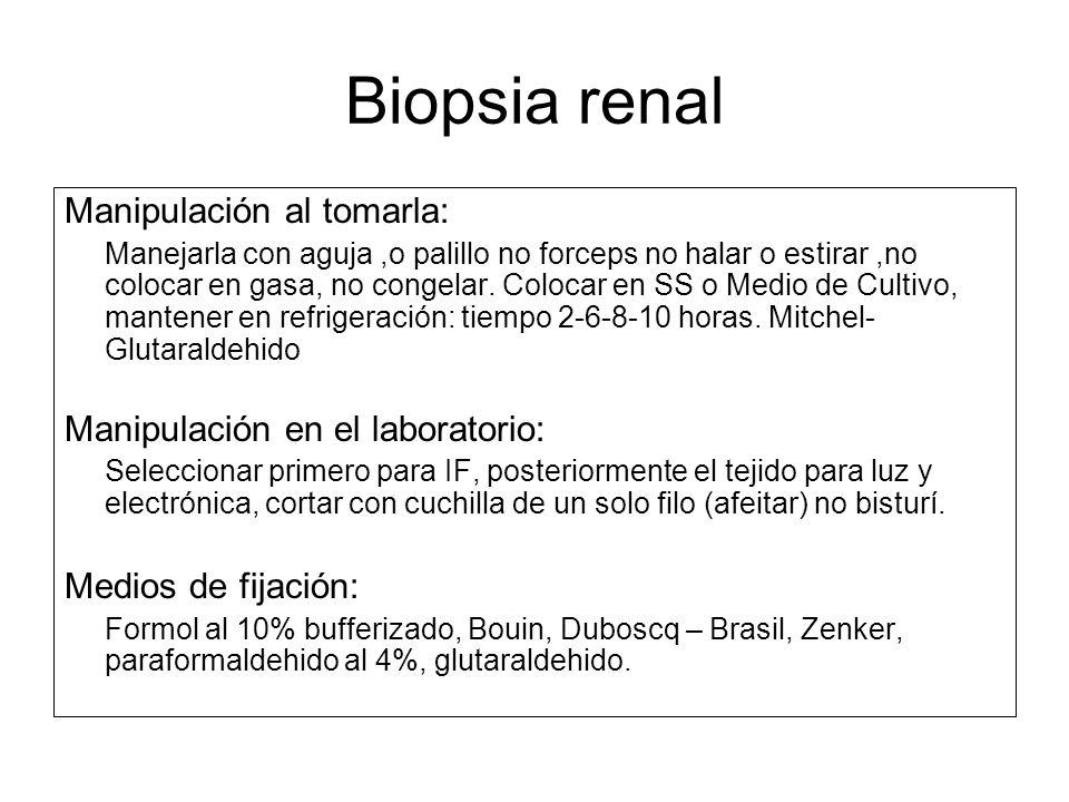 Biopsia renal Manipulación al tomarla: Manejarla con aguja,o palillo no forceps no halar o estirar,no colocar en gasa, no congelar. Colocar en SS o Me