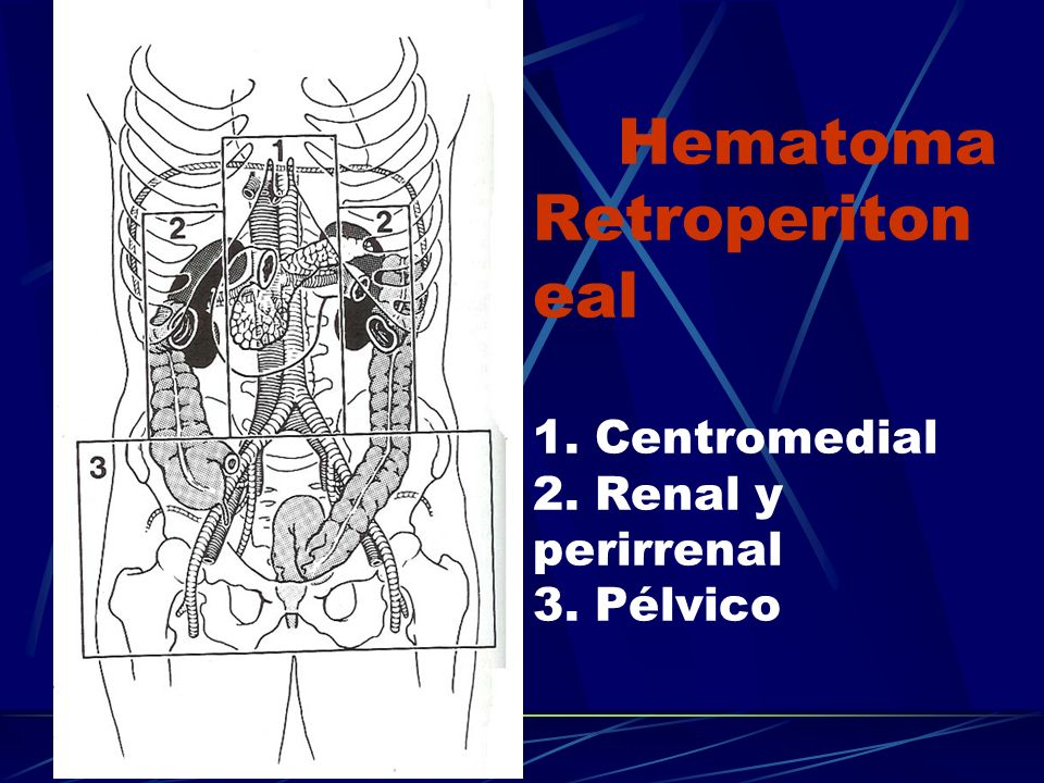 Hematoma Retroperiton eal 1. Centromedial 2. Renal y perirrenal 3. Pélvico