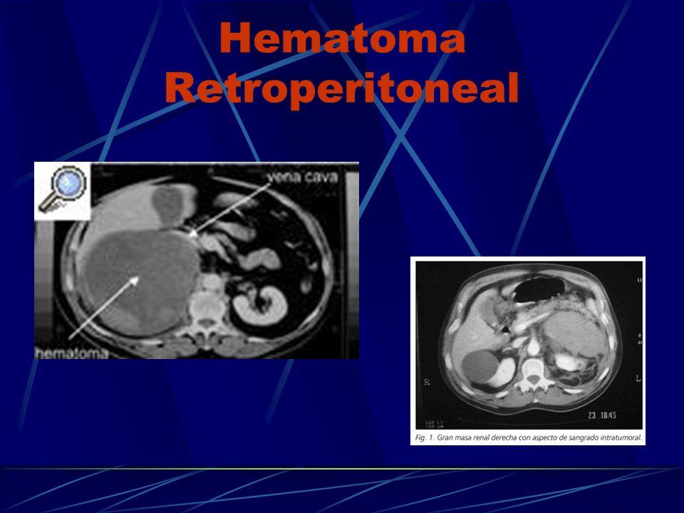 Hematoma Retroperitoneal