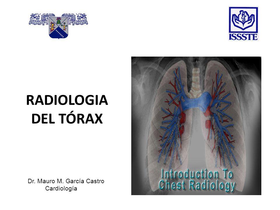 Atelectasia masiva del pulmón izquierdo.