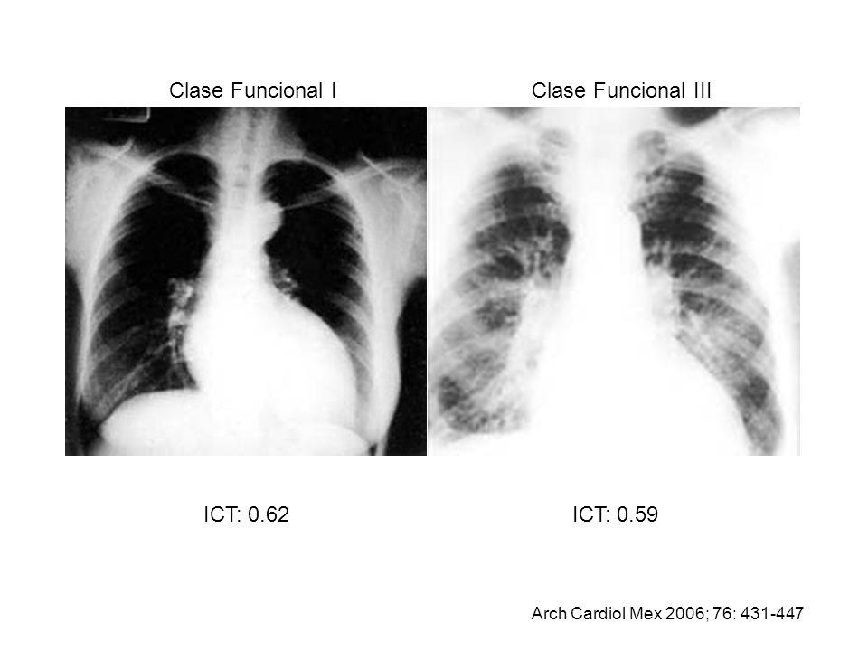 ICT: 0.62ICT: 0.59 Clase Funcional IIIClase Funcional I Arch Cardiol Mex 2006; 76: 431-447