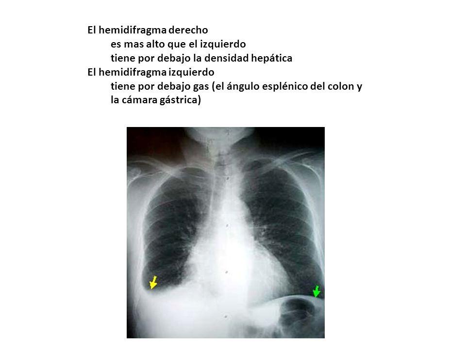 El hemidifragma derecho es mas alto que el izquierdo tiene por debajo la densidad hepática El hemidifragma izquierdo tiene por debajo gas (el ángulo e