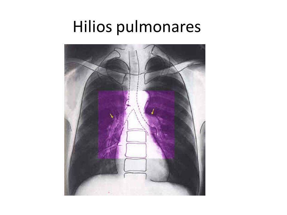 Hilios pulmonares