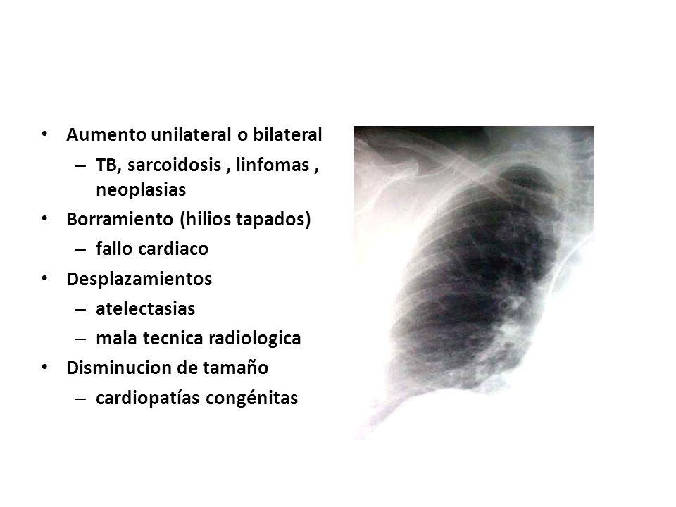 Aumento unilateral o bilateral – TB, sarcoidosis, linfomas, neoplasias Borramiento (hilios tapados) – fallo cardiaco Desplazamientos – atelectasias –