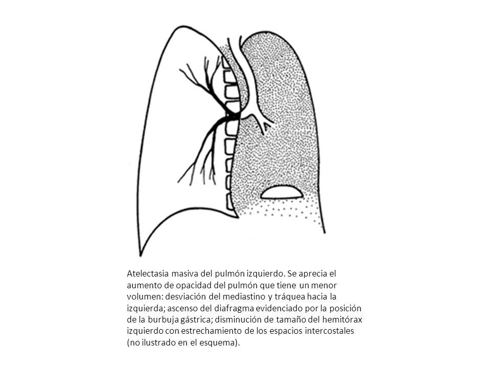 Atelectasia masiva del pulmón izquierdo. Se aprecia el aumento de opacidad del pulmón que tiene un menor volumen: desviación del mediastino y tráquea