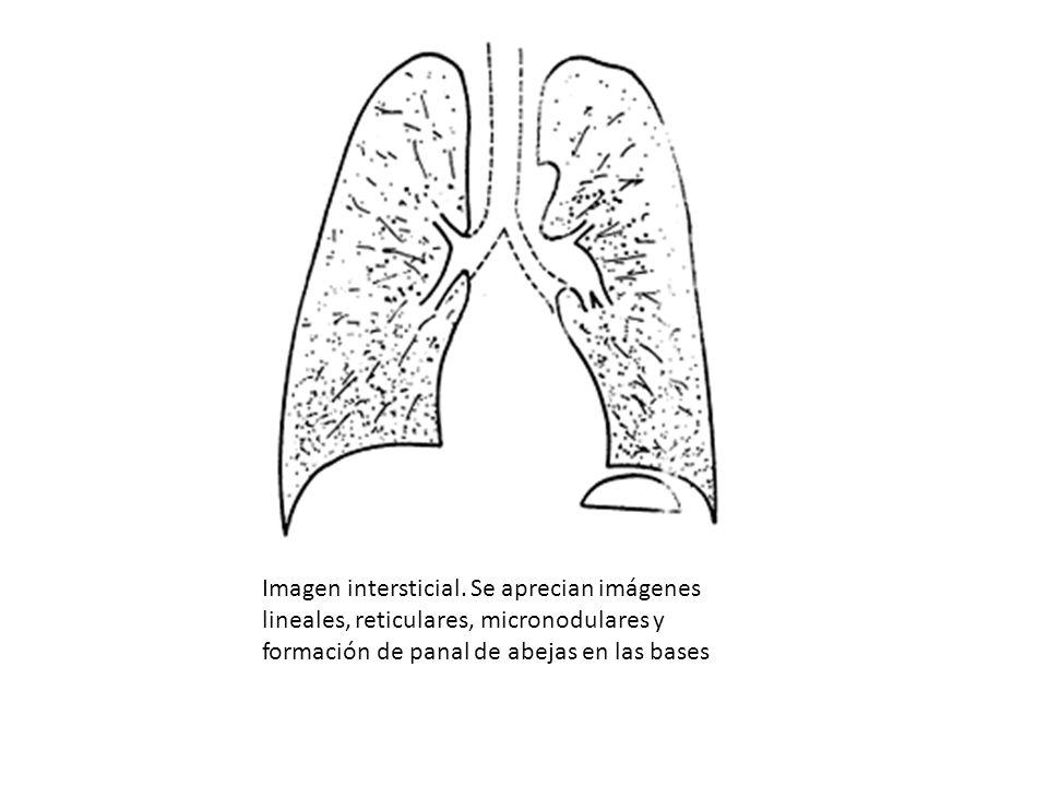 Imagen intersticial. Se aprecian imágenes lineales, reticulares, micronodulares y formación de panal de abejas en las bases