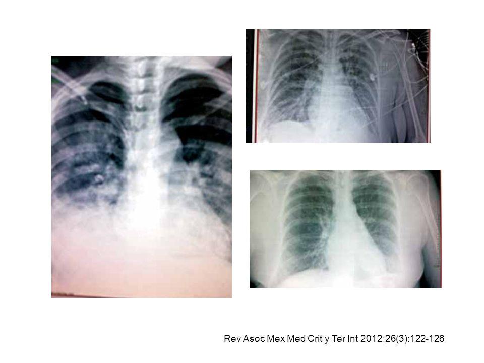 Rev Asoc Mex Med Crit y Ter Int 2012;26(3):122-126
