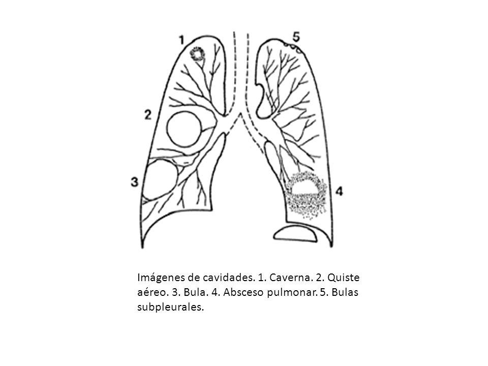 Imágenes de cavidades. 1. Caverna. 2. Quiste aéreo. 3. Bula. 4. Absceso pulmonar. 5. Bulas subpleurales.