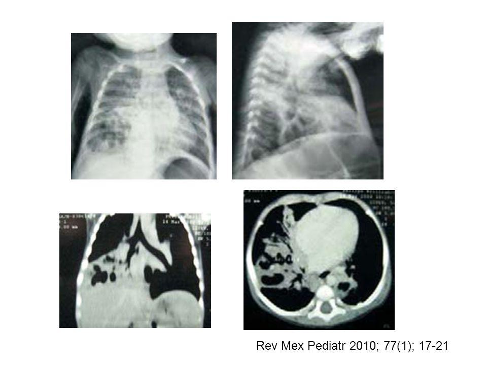 Rev Mex Pediatr 2010; 77(1); 17-21