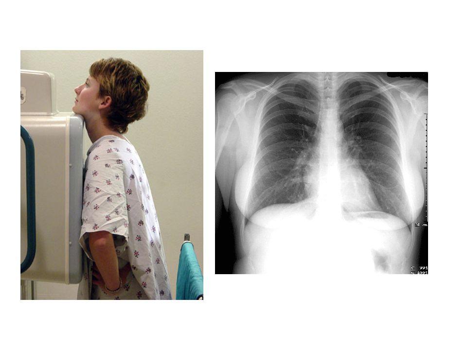 Aumento unilateral o bilateral – TB, sarcoidosis, linfomas, neoplasias Borramiento (hilios tapados) – fallo cardiaco Desplazamientos – atelectasias – mala tecnica radiologica Disminucion de tamaño – cardiopatías congénitas