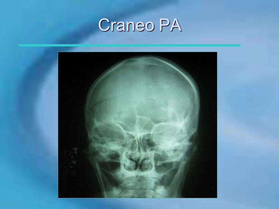 Craneo PA