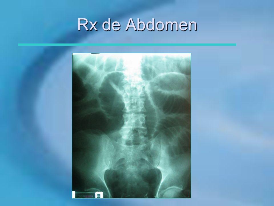 Rx de Abdomen