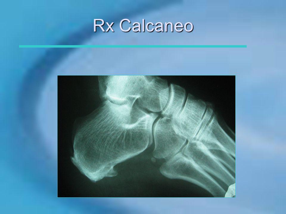 Rx Calcaneo