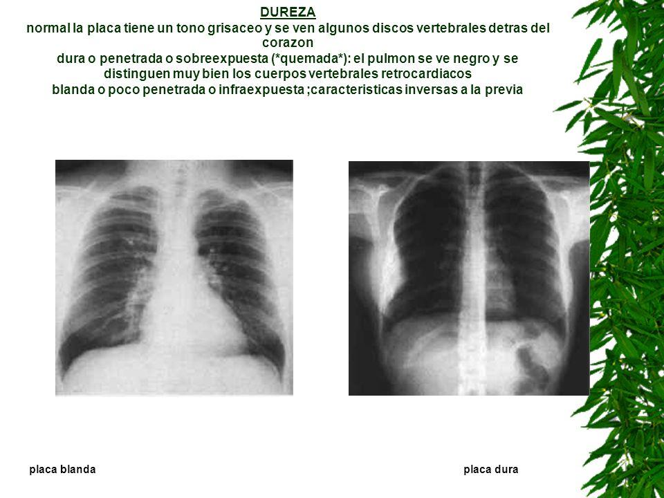 DUREZA normal la placa tiene un tono grisaceo y se ven algunos discos vertebrales detras del corazon dura o penetrada o sobreexpuesta (*quemada*): el